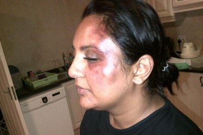 Zainub Priya Dala's injuries after she was was beaten with a brick.