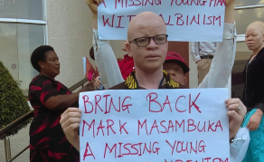 Man with Albinism Murdered - Malawi Catholic Priest Arrested
