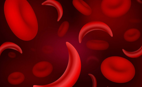 World Sickle Cell Day - Why Disease is Endemic in Nigeria