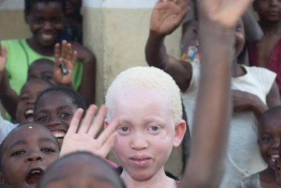 Albinism in Malawi (file photo).