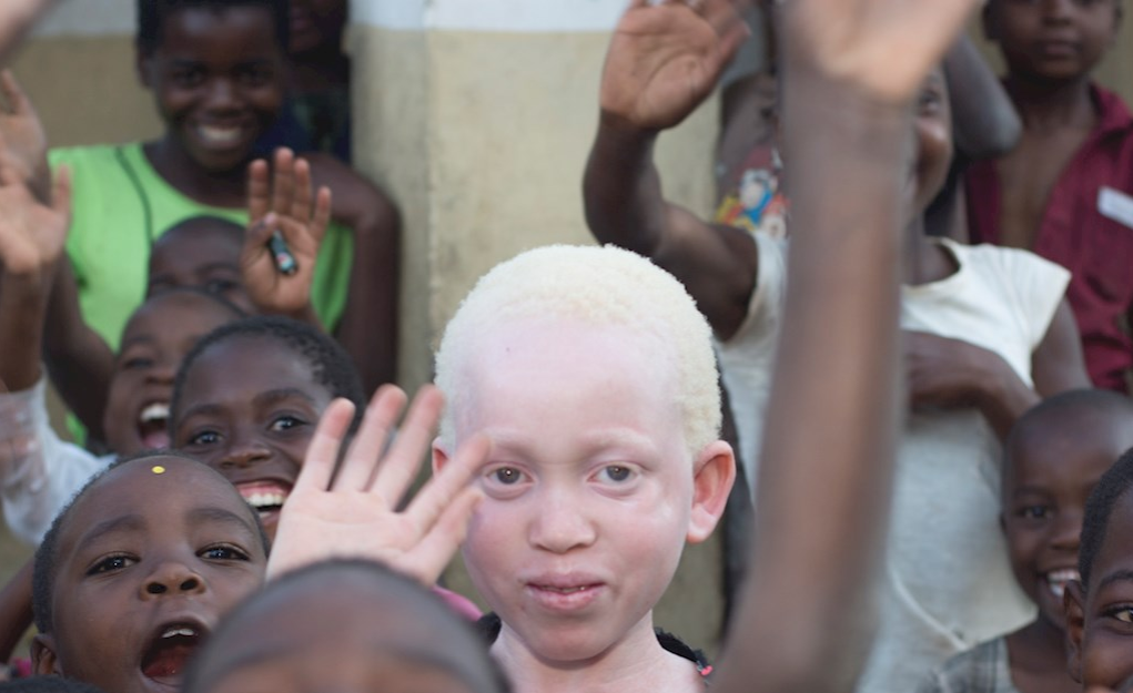 Malawi Albinism Group Meet Diplomats Over Seeking Asylum in Other Countries