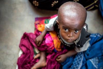 Un enfant souffrant de malnutrition attend d'être soigné dans un centre de santé dans la province du Kasaï oriental en République démocratique du Congo