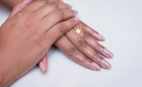 Nigeria: Stop Nail Biting, It Makes You Vulnerable to Diseases ...