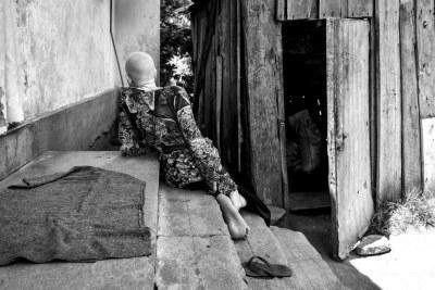 Lightness, une jeune fille tanzanienne de 13 ans atteinte d'albinisme, photographiée de dos en 2016 sur l'île d'Ukerewe, en Tanzanie. Elle a confié qu'elle voulait parfois être invisible.