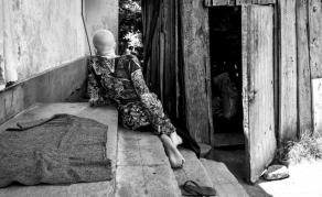 En Tanzanie, un plan pour protéger les personnes atteintes d'albinisme